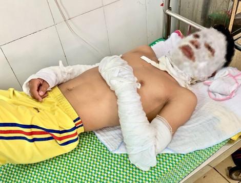 Vụ 3 cầu thủ Sông Lam Nghệ An bị bỏng: đã xác định nguyên nhân vụ nổ