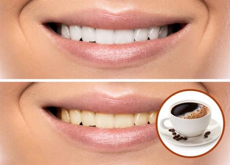 Bạn muốn sở hữu hàm răng trắng khỏe, hãy dừng ngay những thói quen xấu này