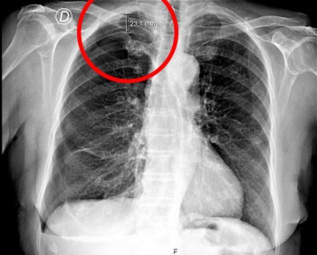 Lung phoi sau khi cham cuu vai o phong kham Trung Quoc