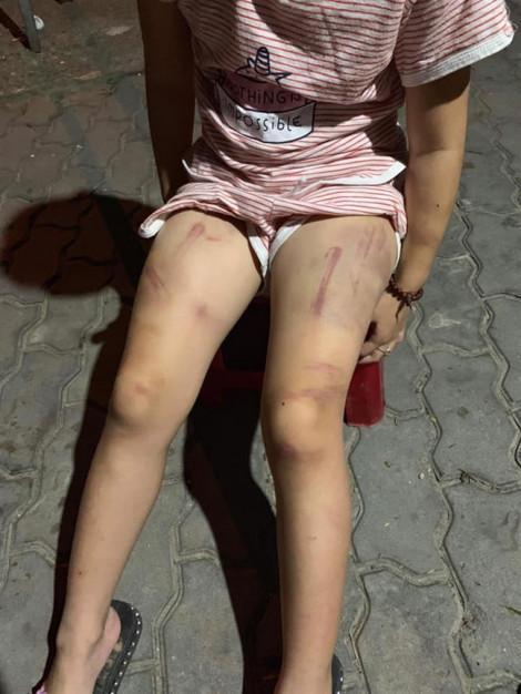 Bé gái 6 tuổi bị bà cố nội đánh bầm tím khắp người