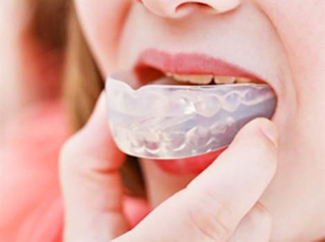 Hỏng 'góc con người' vì tự ý niềng chỉnh răng tại nhà