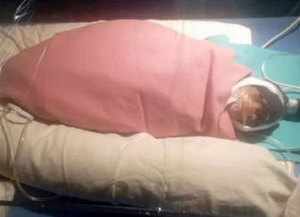 Cụ bà 75 tuổi có một lá phổi hạ sinh bé gái