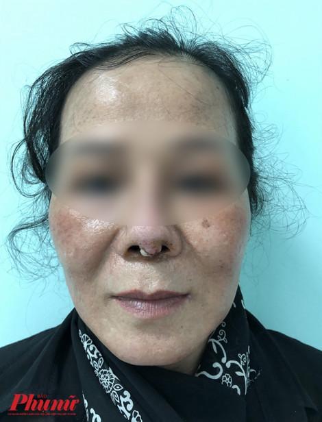 Căng da mặt níu kéo tuổi xuân, chưa kịp trẻ đã liệt mặt