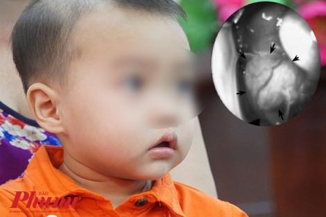 U hiếm gặp gây lồi mắt trái bé trai 15 tháng tuổi