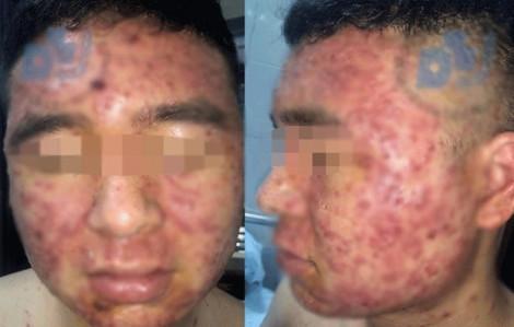 Dùng thuốc mua trên mạng, mụn bọc phủ kín mặt nam thanh niên 22 tuổi
