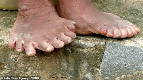 Không dám ra khỏi nhà khi có tới 19 ngón chân và 12 ngón tay