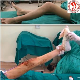 Thay khớp gối giúp nữ sinh 16 tuổi bị ung thư xương đi lại trên đôi chân của mình