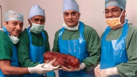 Bác sĩ mổ lấy quả thận 7,4 kg từ bụng bệnh nhân