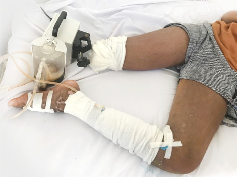Gia đình không cho bác sĩ điều trị rắn cắn, bé gái bị cắt bỏ chân oan uổng