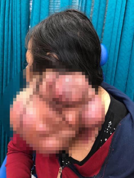 Bác sĩ Chợ Rẫy giải cứu người phụ nữ có '2 đầu'