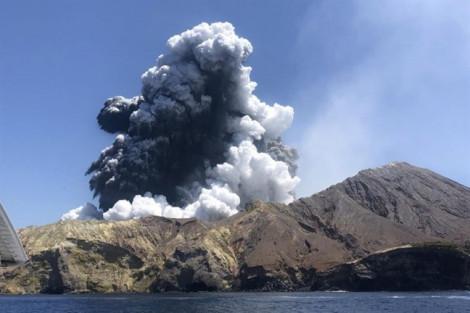 Các bệnh viện New Zealand đặt thêm da từ Mỹ để cứu nạn nhân núi lửa