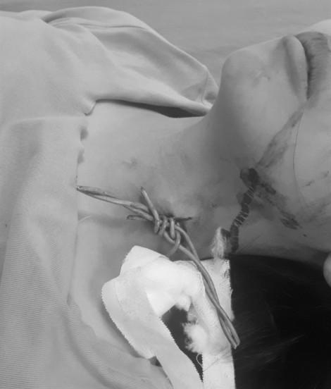 Một học sinh ngã xe đạp điện bị hàng rào dây thép gai cắm vào cổ