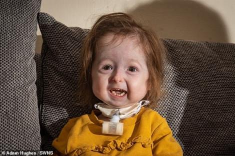 Bé gái 2 tuổi trông như bà lão vì có kiểu gen kỳ lạ nhất thế giới
