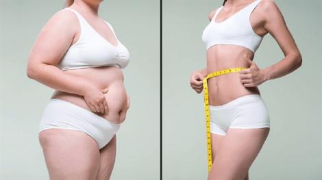 Giảm béo bằng công nghệ