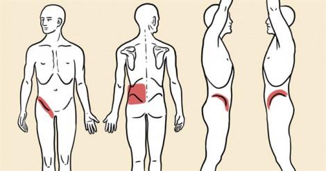 5 dấu hiệu cảnh báo có thể bạn bị sỏi thận