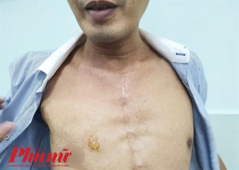 Bệnh viện Chợ Rẫy mổ tim cho người bị hở van 2 lá chỉ bằng một đường rạch nhỏ
