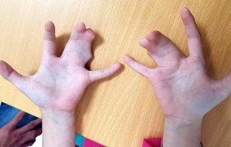 Một dòng họ 4 đời bị dị tật bàn tay càng tôm hùm
