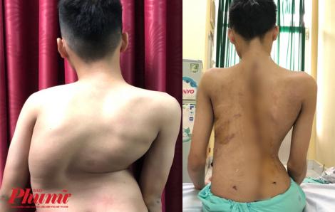 Hơn 10 bác sĩ nắn lại cột sống cho cậu bé 'người rắn'