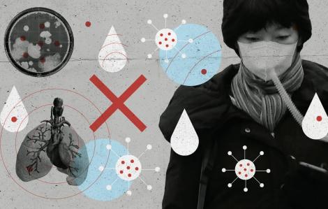 Top những loại virus nguy hiểm không thua kém nCoV