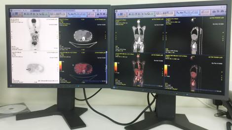 Bệnh viện Ung Bướu TPHCM đưa máy PET/CT hiện đại nhất Việt Nam vào sử dụng