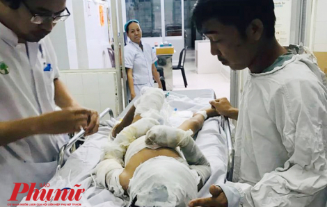 Cha mẹ thiếu 3 triệu đồng, bé trai bị dì ruột tẩm xăng đốt