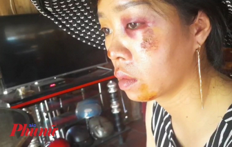 Bình Phước: Truy tìm hai thanh niên gây ra hai vụ cướp táo tợn trong cùng một đêm