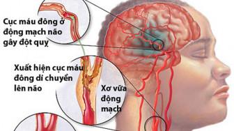 Chế độ ăn uống ảnh hưởng đến các loại đột quỵ khác nhau