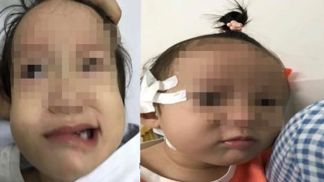 Bé 17 tháng tuổi liệt mặt dù lúc đầu chỉ có chảy mũi