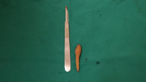 Em bé 5 tháng tuổi ở Hà Nội 'mọc' đuôi dài 9,5cm