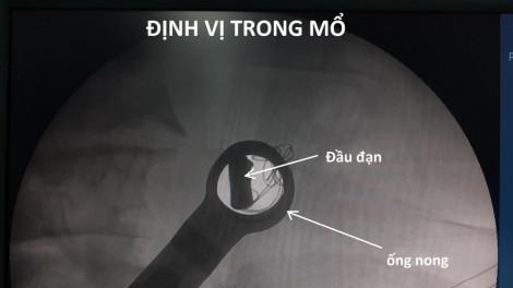 Mổ lấy viên đạn nằm hơn 50 năm trong người một cựu chiến binh