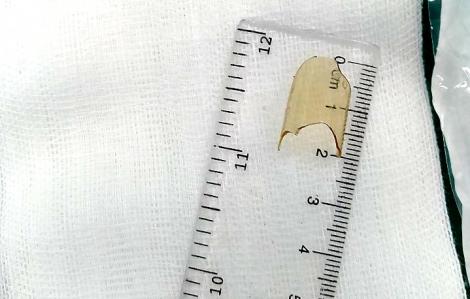 Bé gái 8 tháng tuổi nuốt mảnh thủy tinh vỡ của ống thuốc