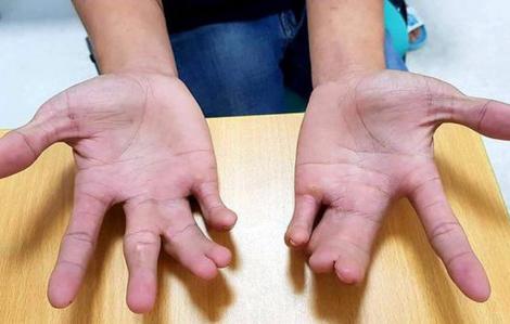 Những dị tật 'quái gở' được bác sĩ Việt Nam điều trị thành công ngay đầu năm 2020