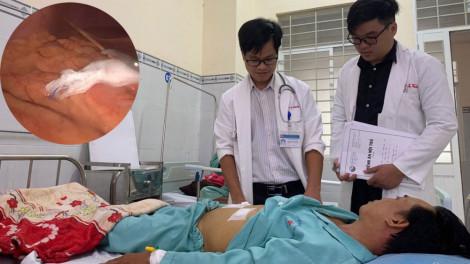 Vào bệnh viện khám vì đau khi trở mình, bác sĩ phát hiện bệnh nhân bị tăm xỉa răng đâm thủng gan, dạ dày