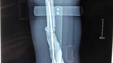 Cô gái trẻ bị ung thư xương được phẫu thuật thay toàn bộ xương đùi bằng kim loại