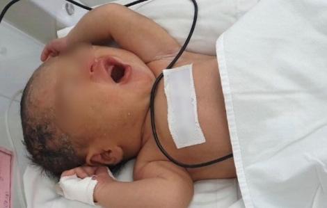 Cô gái trẻ có 2 tử cung đón con trai đầu lòng ở Bệnh viện Từ Dũ
