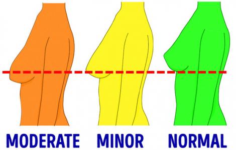 Bí quyết để ngực không bị xệ sau giảm cân