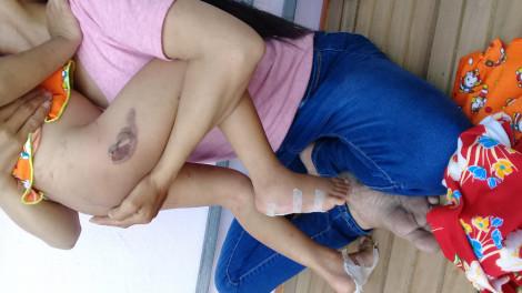 Tây Ninh: cha dượng hành hạ bé gái 5 tuổi bằng cách dí tay chân vào pô xe nóng