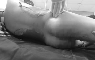 Nghịch cồn sát khuẩn, bé trai 10 tuổi bỏng nặng bộ phận sinh dục