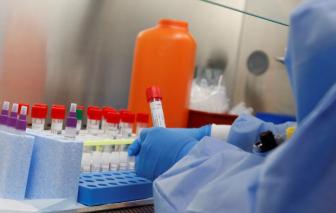 Thuốc trị sốt rét được sử dụng chữa COVID-19 rộng rãi tại Hoa Kỳ dù chưa được kiểm chứng