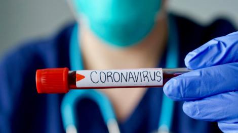 3 nguyên nhân chính khiến bệnh nhân COVID-19 đã âm tính nay dương tính trở lại