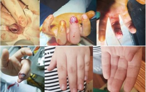 Bé trai 6 tuổi dập nát đốt ngón tay do kẹp vào cửa