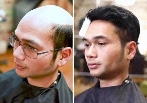 Đàn ông châu Á đối phó với việc trẻ hóa hói đầu