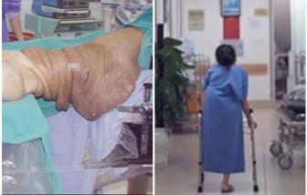 Cắt khối u nặng hơn 40kg ở chân khiến cô gái trẻ phải bỏ học từ năm lớp 8