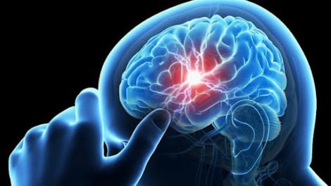 Trẻ bị đau nửa đầu làm gì để giảm đau?