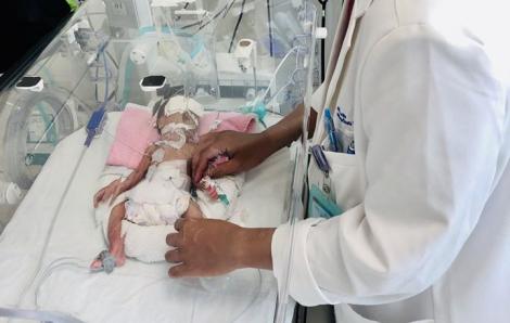 Bác sĩ mổ khẩn, cứu sống trong gang tấc bé gái tí hon bị tắc ruột