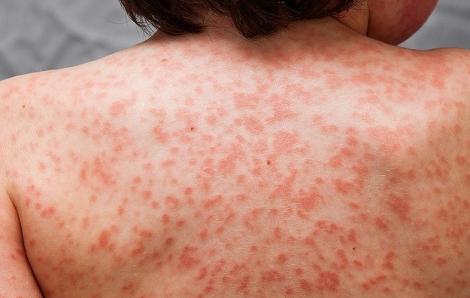 Anh: 100 trẻ em mắc bệnh lạ liên quan đến COVID-19, cảnh báo về dịch mới