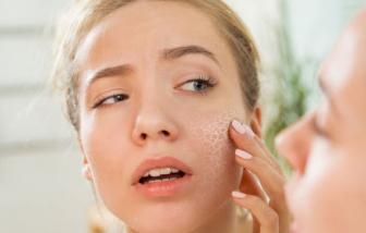 Hiểu làn da khô và bí quyết giúp da mềm mại