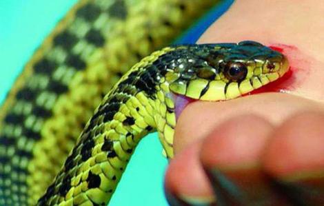 Bệnh viện Bạch Mai đang điều trị cùng lúc cho 8 người bị rắn độc cắn