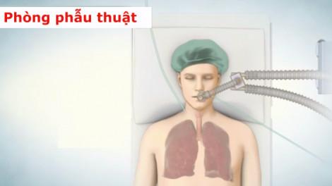 Clip: Ghép phổi diễn ra như thế nào?
