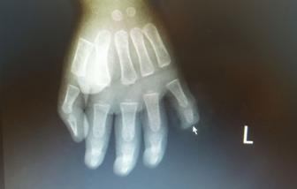 Bé trai 17 tháng tuổi bị đứt rời ngón tay do nghịch dao